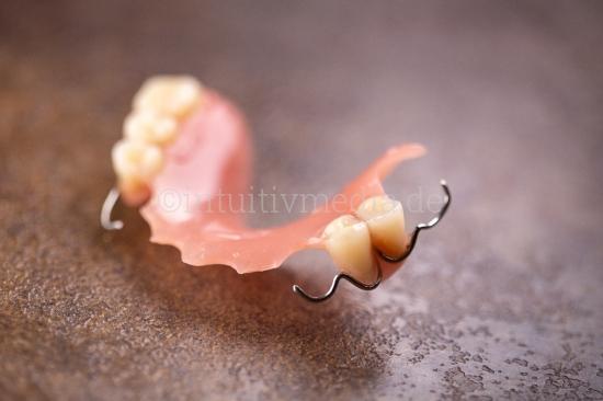 Künstliche Zähne - Zahnersatz